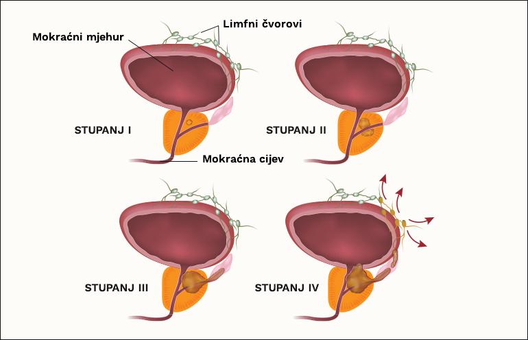 kronični nebakterijski prostatitis