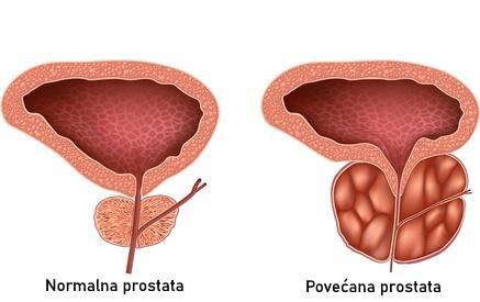 Kako se dijagnosticira povećana prostata