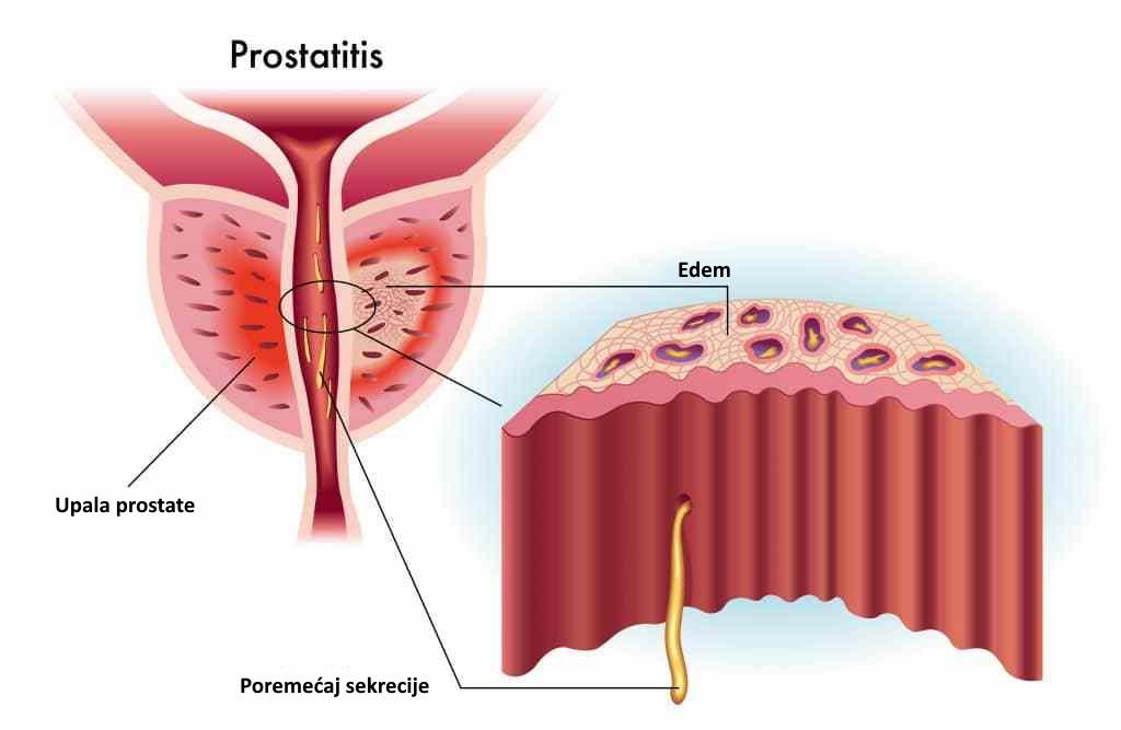 prostatitis simptomi liječenje)
